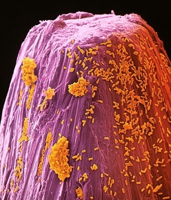 How many bacteria fit on the head of a pin
