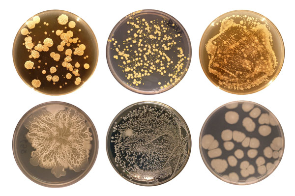 Image result for bacteria in belly button