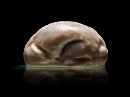 Lissencephaly brain