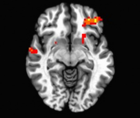 Brain region associated with restraint.