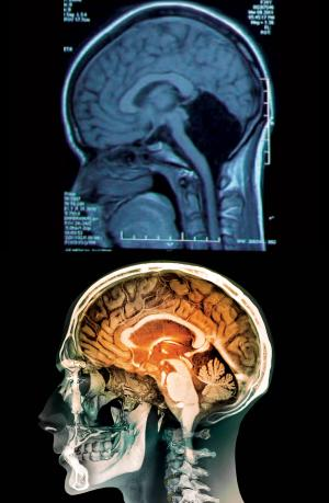 Scan showing no cerebellum (top). Normal brain (bottom).
